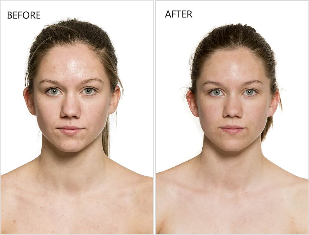 before after serum 8